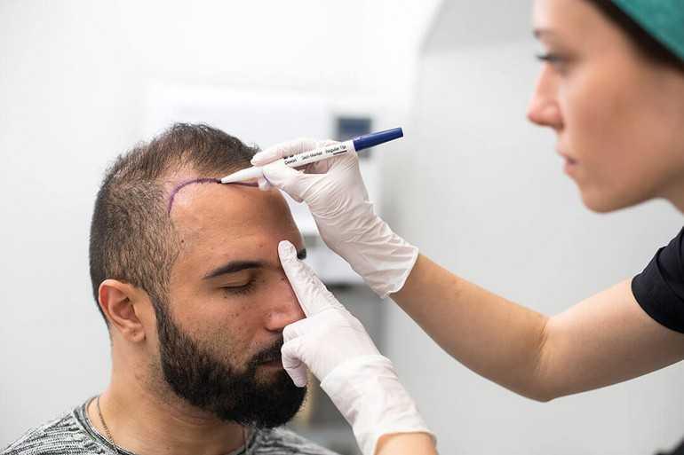 Как делают пересадку волос бесшовным методом fue: особенности метода и результаты