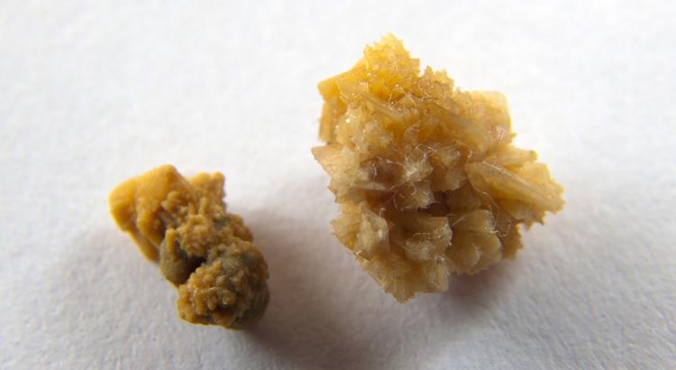Как вывести соль из организма народными средствами дома