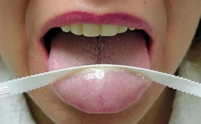 щетка для чистки языка