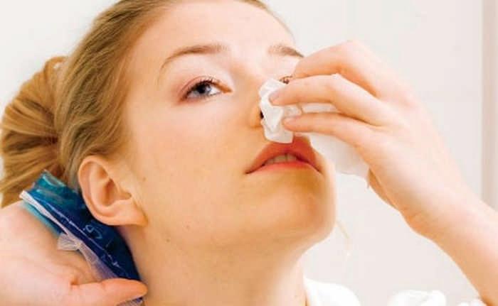 Причины частого носового кровотечения у взрослых и детей