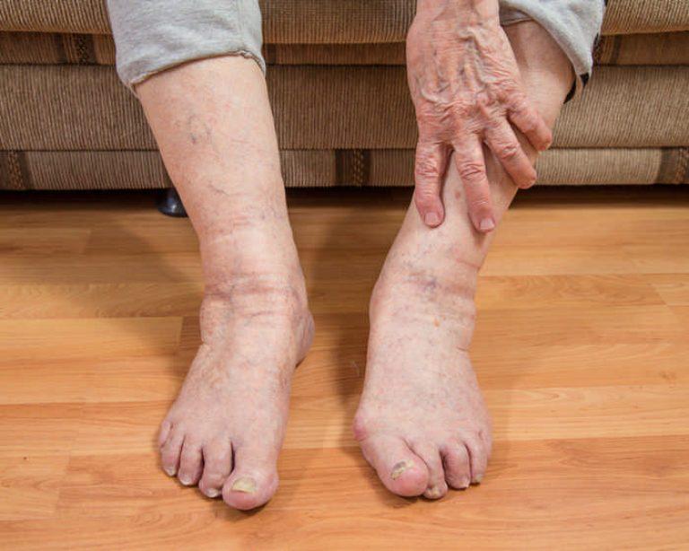 Отек ног у пожилых людей лечение