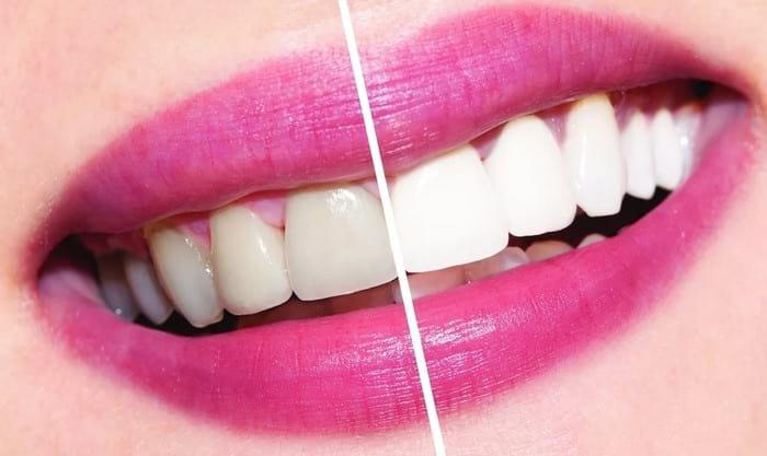 Как отбелить зубы без вреда
