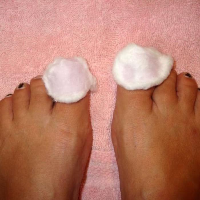 Лечение грибка ногтей современными и народными способами
