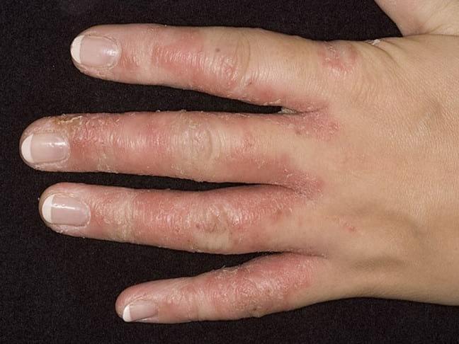 Что такое грибок между пальцами рук