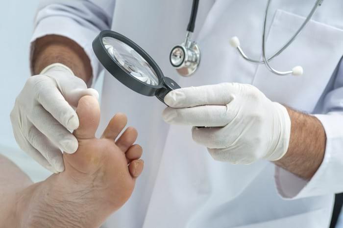 Самолечение грибка ногтей на ногах