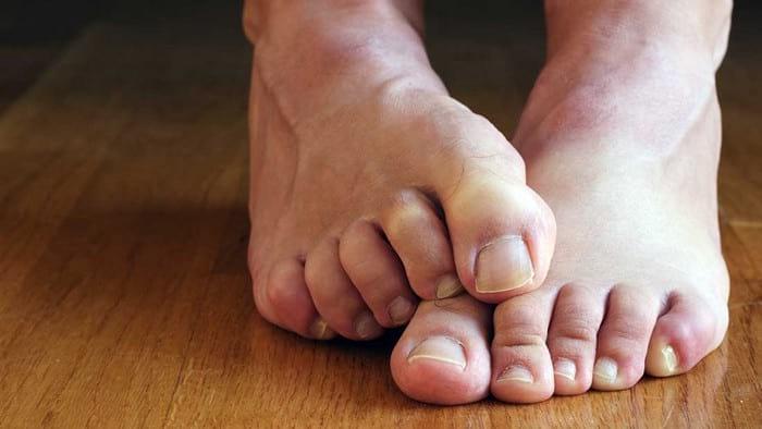 Грибок между пальцами : эффективное лечение в домашних условиях