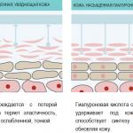 Кому и зачем нужна гиалуроновая кислота для суставов