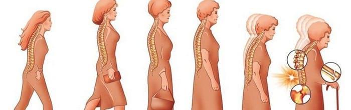 Лечение остеопороза: серьезное заболевание и неприятные последствия