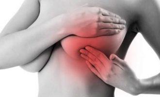 Что такое мастопатия молочных желез