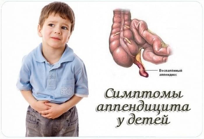 Первые признаки и симптомы аппендицита у детей и взрослых