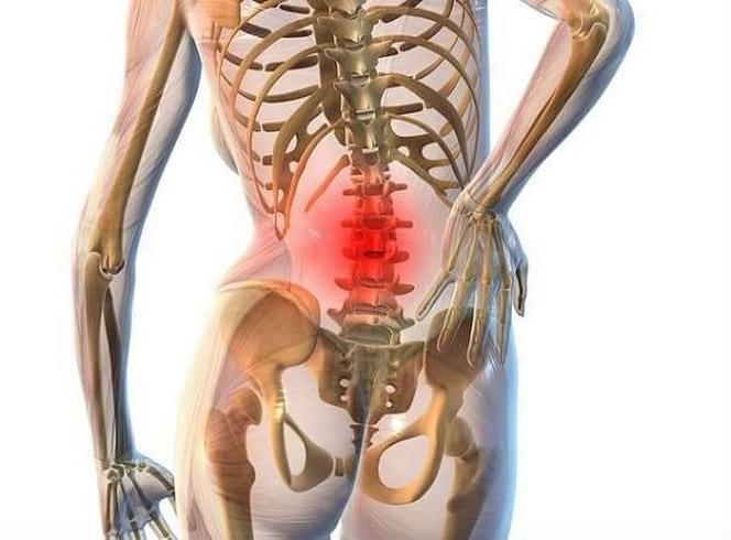 Лечение остеохондроза поясничного отдела позвоночника: важные советы