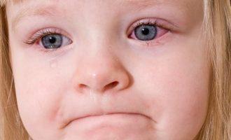 Лечение коньюктивита у детей: самые эффективные методы лечения