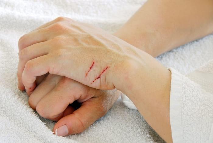 Порезы на руках: как правильно обеспечить первую помощь