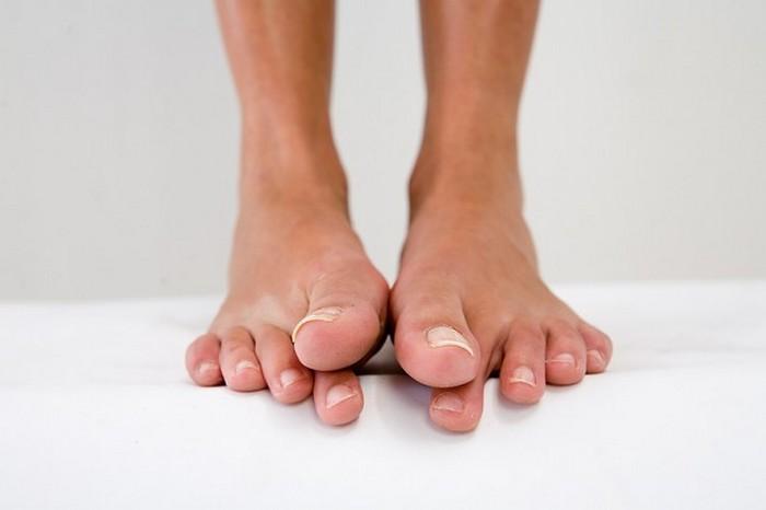 Как лечить вросший ноготь на большом пальце ноги в домашних условиях