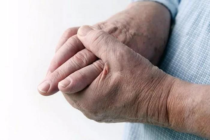 Причины и способы лечения артрита пальцев рук