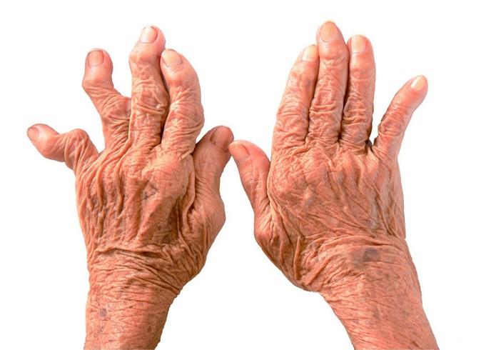 Межфаланговые суставы болезни очищние суставов в домашних условиях