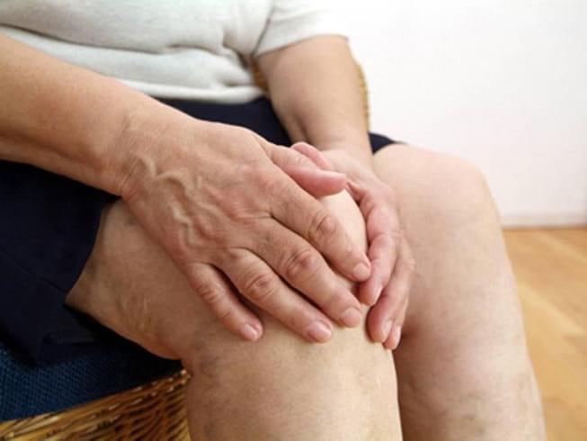 Как лечить артрит коленного сустава — Суставы