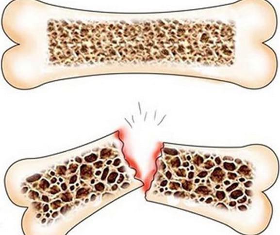 Что принимать для укрепления костей детям, пожилым, после перелома