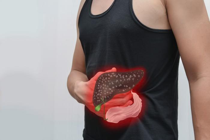 Лечение печени народными средствами - эффективные средства для лечения печени