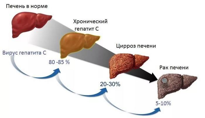 Лечение печени народными средствами: самые эффективные методы