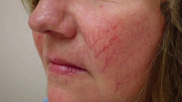 Лечение купероза на лице: симптомы, причины и способы лечения