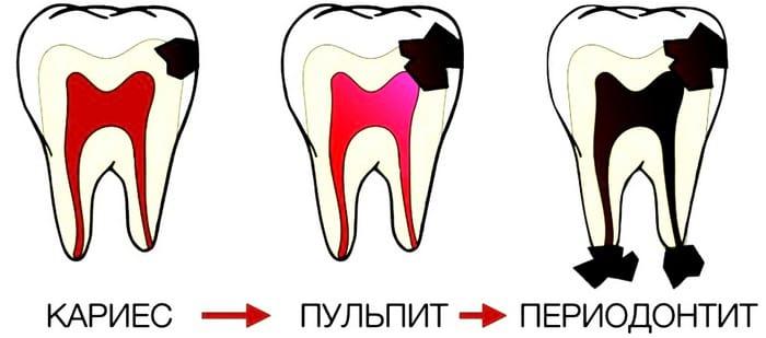 Почему после лечения периодонтита болит зуб