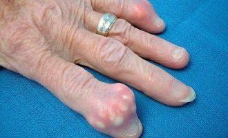 Подагра - что это за болезнь, симптомы, причины и способы лечения