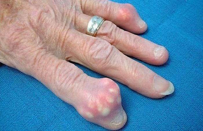 Симптомы подагры у мужчин и женщин, причины и лечение