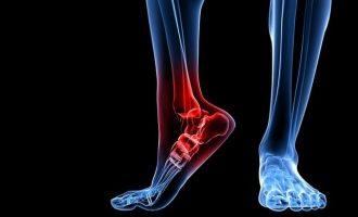 Остеоартроз голеностопного сустава: причины заболевания и методы лечения