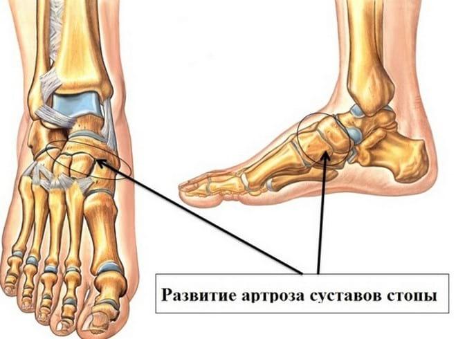Посттравматическая деформация остеоартрит голеностопного сустава чтоб суставы не ржавели