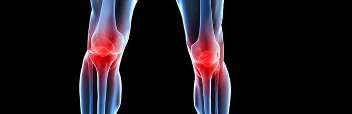 Причины, симптомы и способы лечения остеоартроза коленного сустава