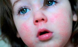 Cкарлатина у детей: как распознать болезнь
