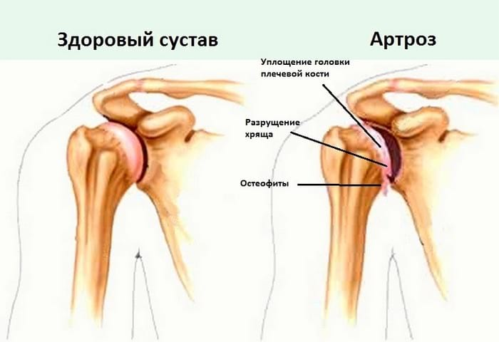 Артрит плечевого сустава лечение в домашних условиях