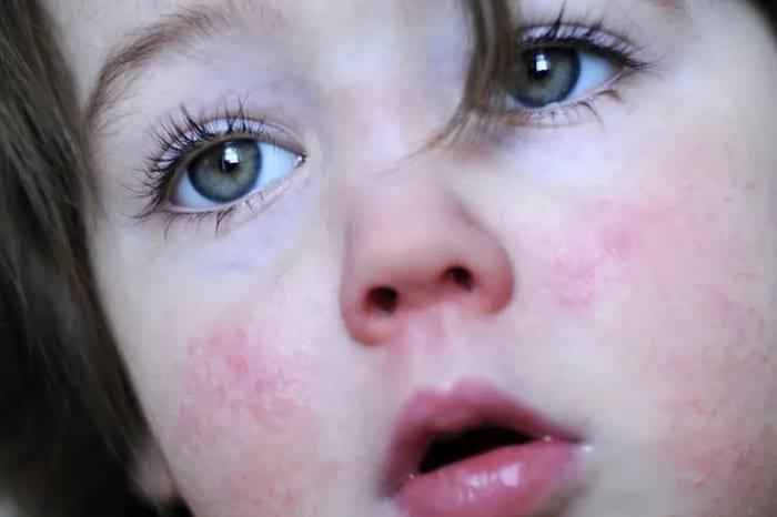 Ложная краснуха у детей симптомы и фото