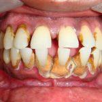 Как быстро удалить зубной камень в домашних условиях
