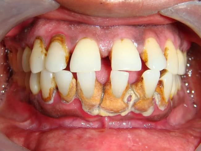 Как убрать зубной камень с зубов