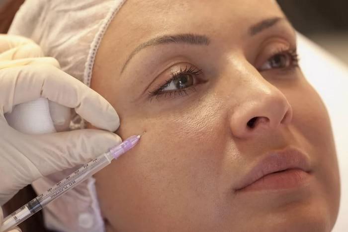 Мезотерапия лица: основное преимущество процедуры