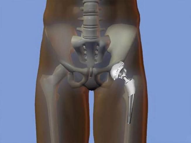эндопротезирование тазобедренного сустава сколько времени длится операция по