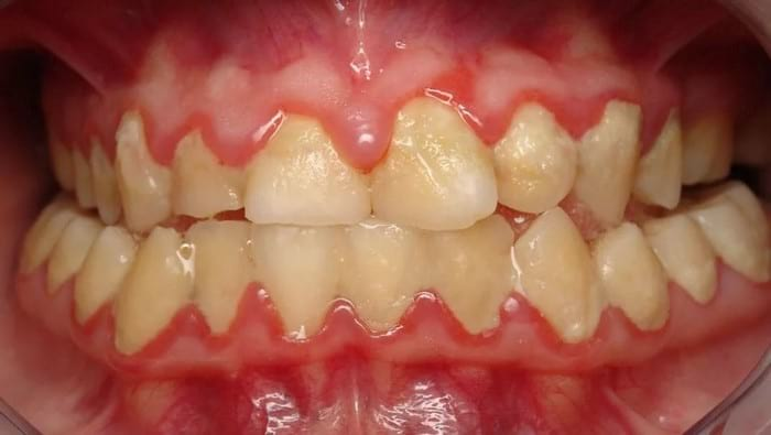 Как очистить зубы от черного налета