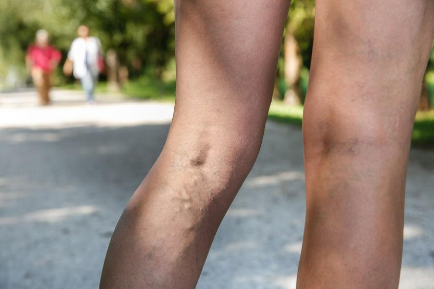 Сильные боли в ноге