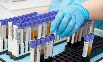 Узнаем группу крови и резус-фактор в домашних условиях и без анализов