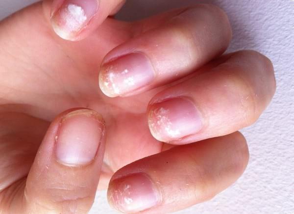 Почему слоятся ногти на руках лечение в домашних условиях 490