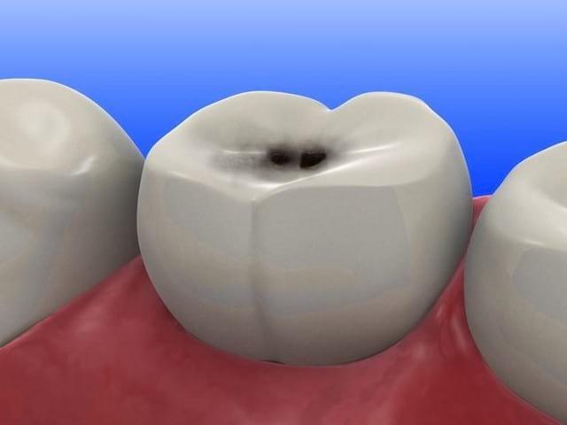 Зубная паста от кариеса — лучшая профилактика зубов