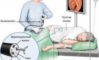 Очищение кишечника перед колоноскопией