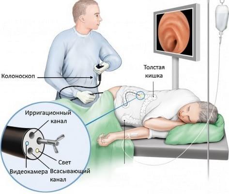 Как очистить кишечник перед колоноскопией: процедуры и препараты