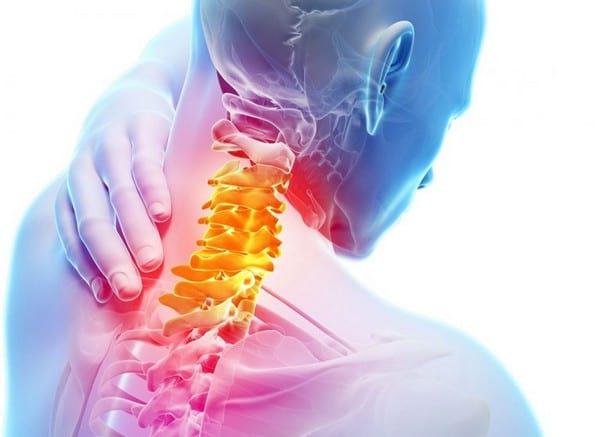 Cимптомы шейного остеохондроза, причины и степени тяжести