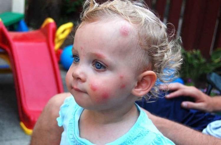 Что можно ребенку от укусов комаров