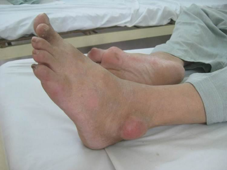 Отложение солей в суставах лечение