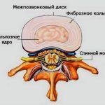 строение межпозвонкового диска