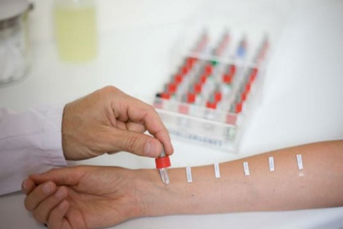 аллергопробы на руке